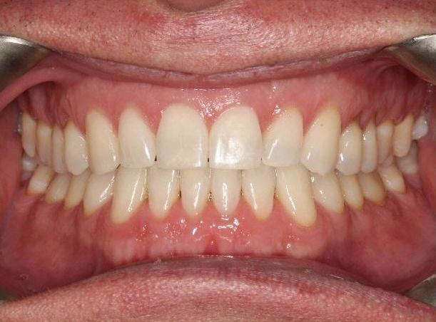 Orthodontic-treatment-followed-by-restorative-dentistry-After-Image