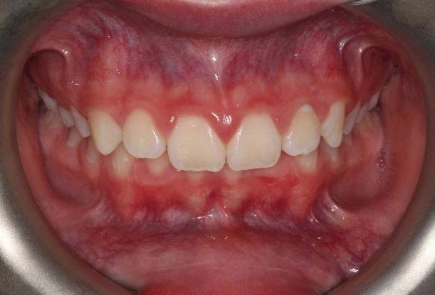 Deep-Bite-Correction-Before-Image
