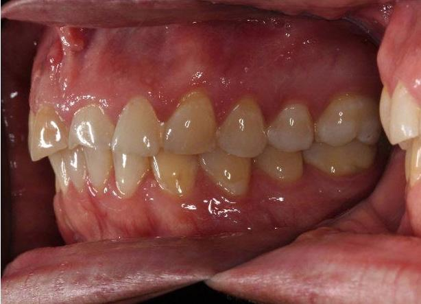 Orthodontic-treatment-followed-by-restorative-dentistry-Before-Image